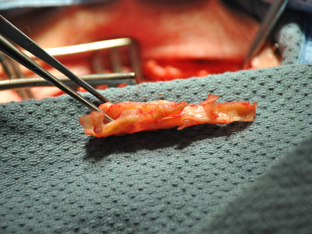 femoral_tibial_bypass_009