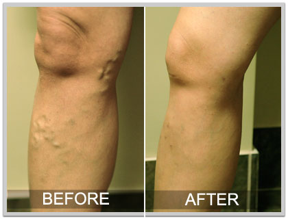 Varicose Vein before and after picture 1