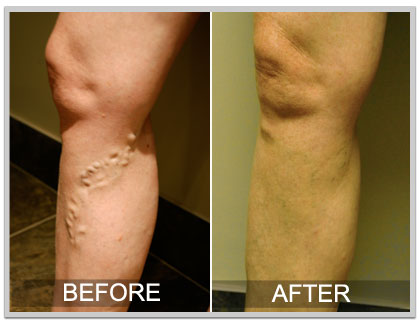Varicose Vein before and after picture 2